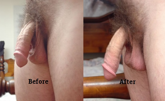 Penis enlargement exercises before-after